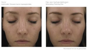 PCA SKIN Perfecting Peel